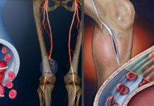 Тромбоз глубоких вен лечение