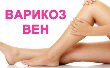 Причины Варикоза на ногах