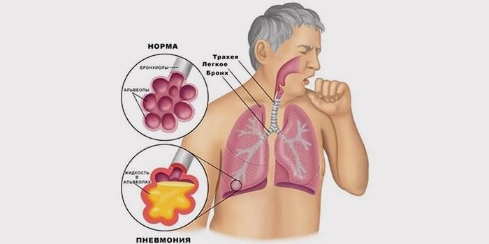Симптомы воспаления легких: как распознать и лечить?